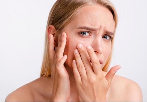 fraxel acne