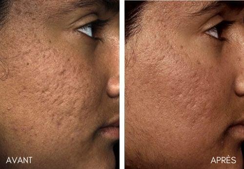 fraxel cicatrice acne